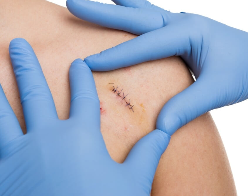 Surgical Dermatology Louisville KY